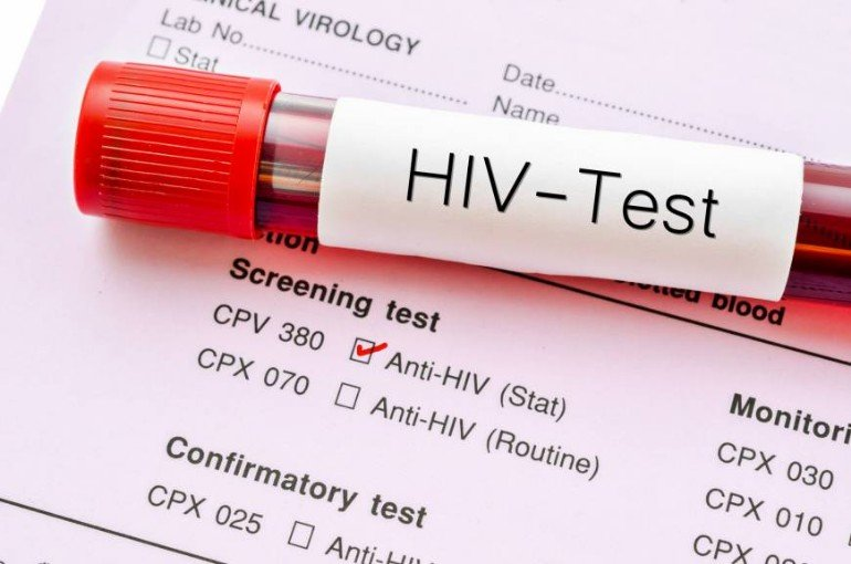 HIV (human immunodeficiency virus) - With Visa Requirements.