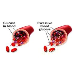 Blood Glucose and Lipid Profile