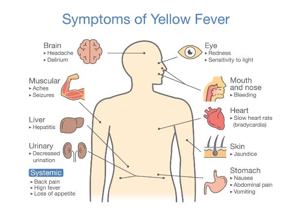 yellow fever symptoms - Sanjivani Ltd